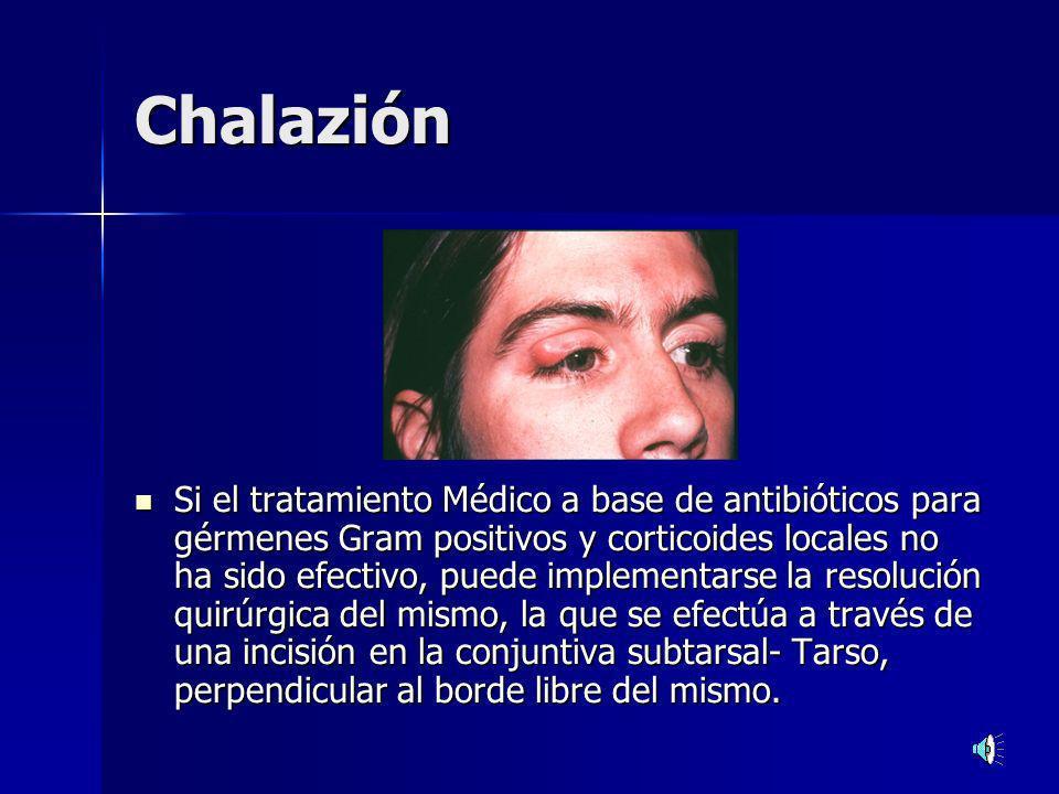 Chalazión