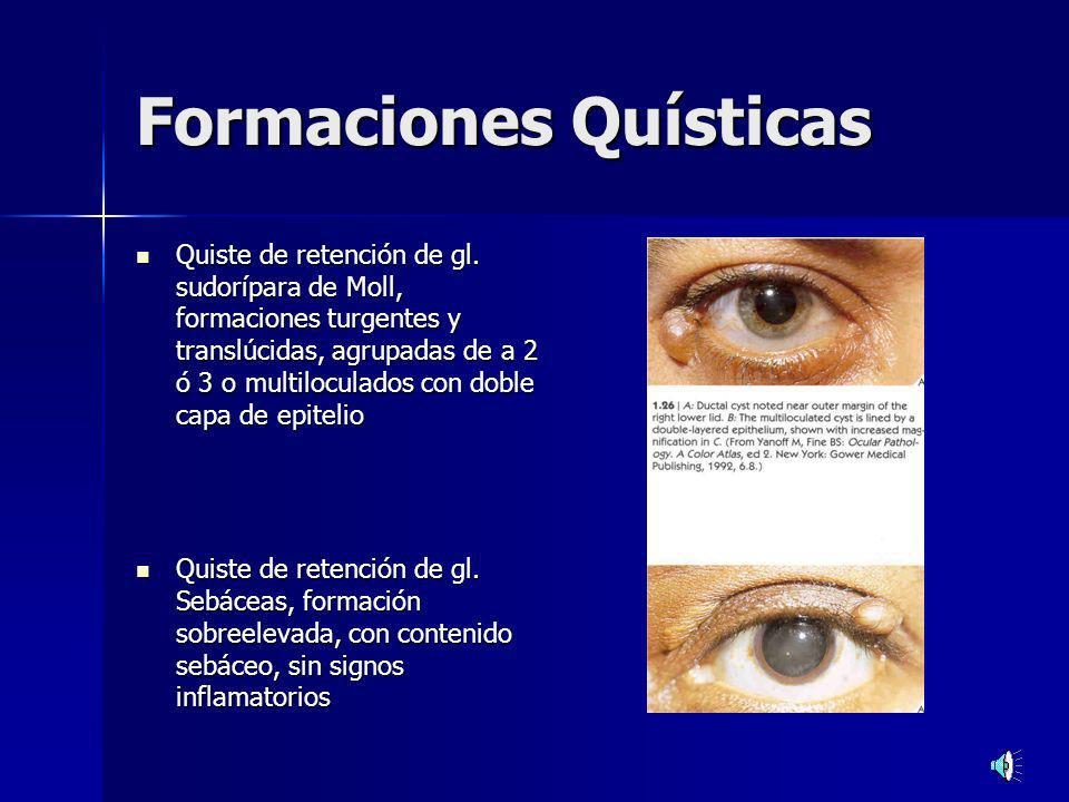 Formaciones Quísticas