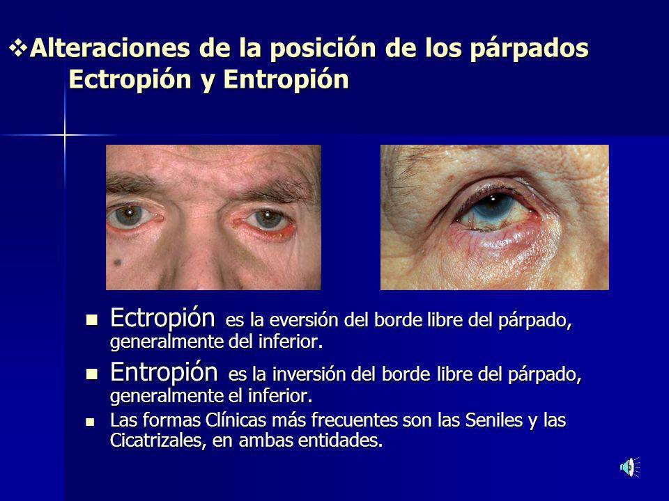 Alteraciones de la posición de los párpados Ectropión y Entropión