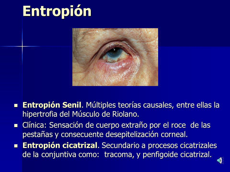 Entropión Entropión Senil. Múltiples teorías causales, entre ellas la hipertrofia del Músculo de Riolano.