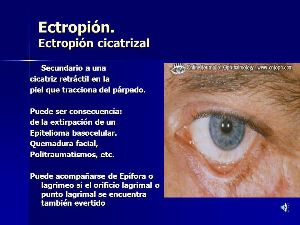 Ectropión. Ectropión cicatrizal