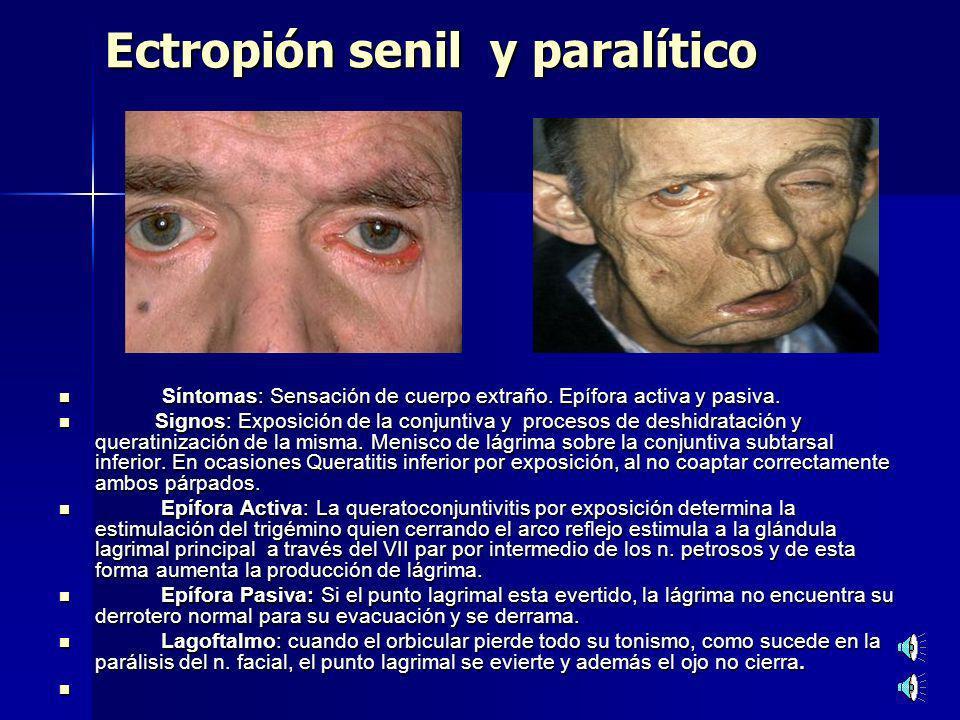 Ectropión senil y paralítico