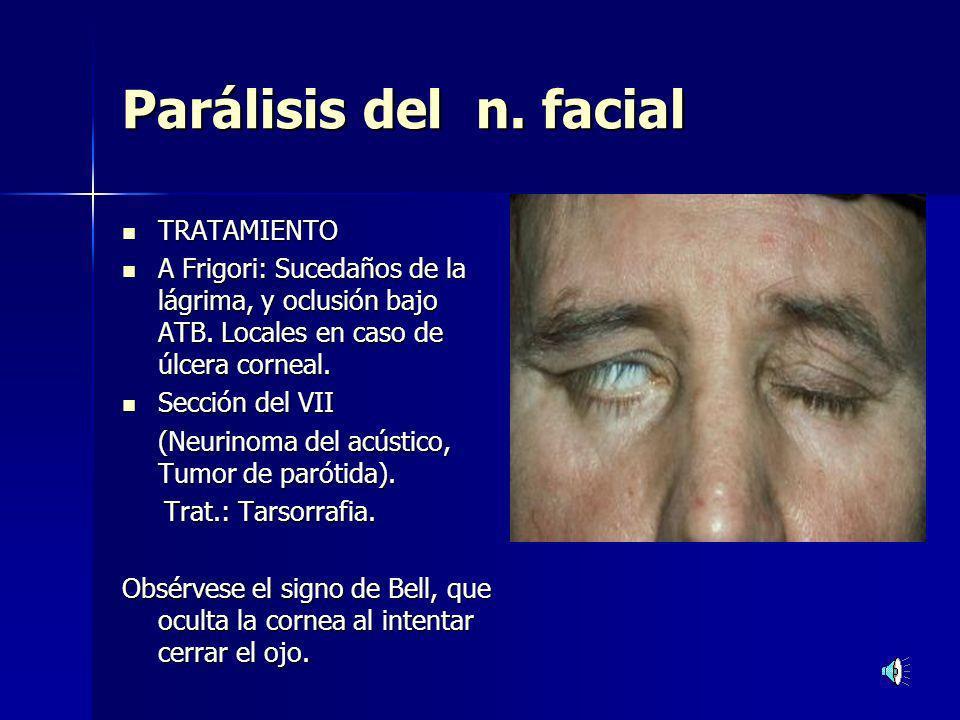 Parálisis del n. facial TRATAMIENTO