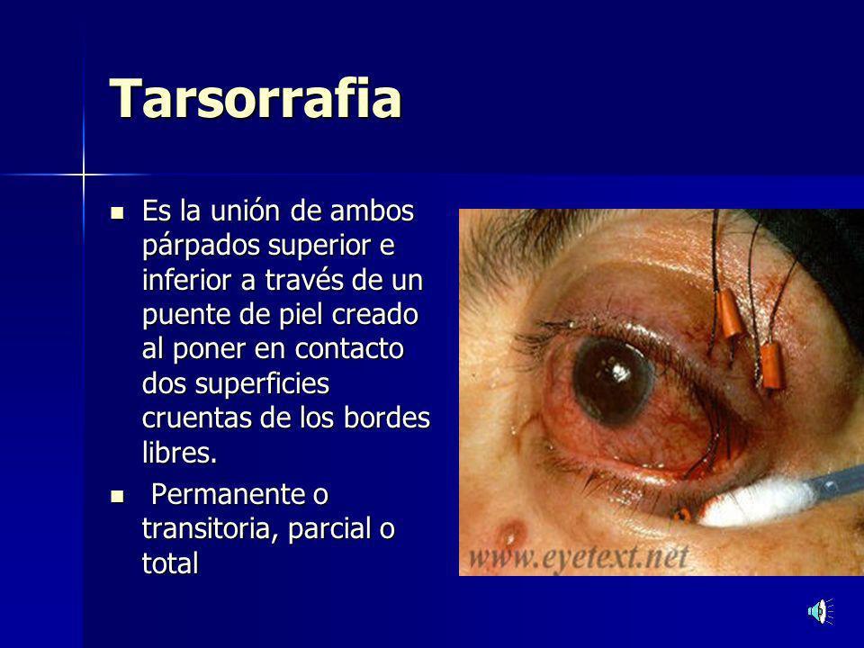 Tarsorrafia