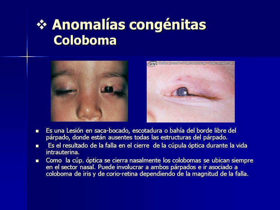 Anomalías congénitas Coloboma