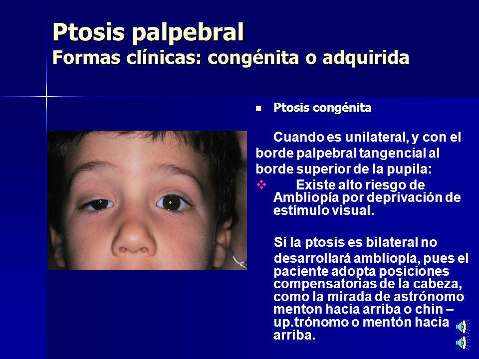 Ptosis palpebral Formas clínicas: congénita o adquirida