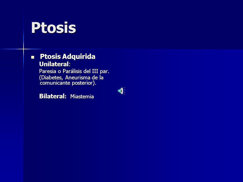 Ptosis Ptosis Adquirida Unilateral: Paresia o Parálisis del III par.
