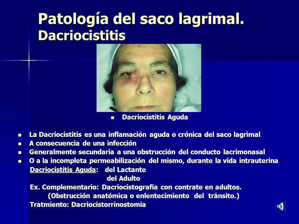 Patología del saco lagrimal. Dacriocistitis