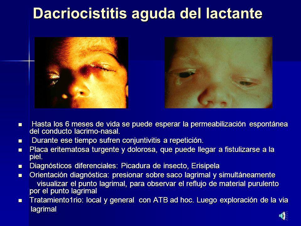 Dacriocistitis aguda del lactante