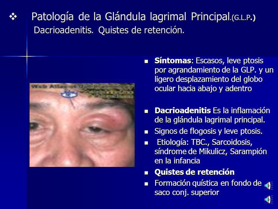 Patología de la Glándula lagrimal Principal.(G.L.P.) Dacrioadenitis. Quistes de retención.