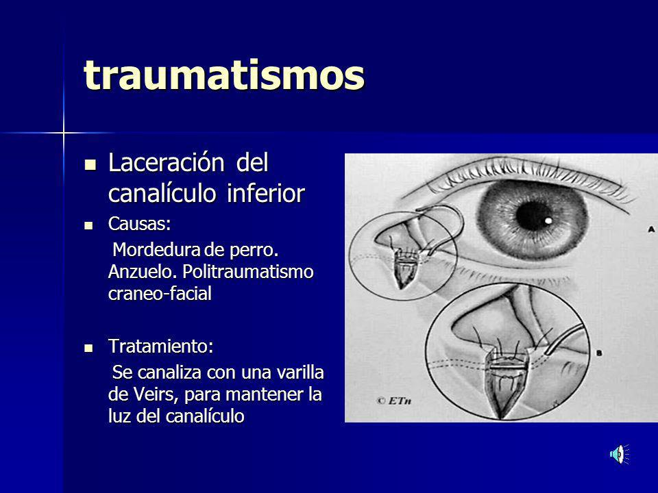traumatismos Laceración del canalículo inferior Causas: