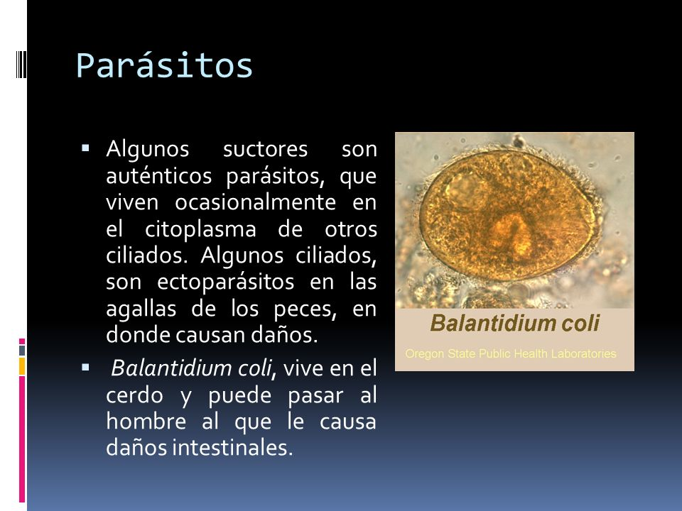 Parásitos