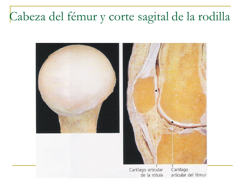 Cabeza del fémur y corte sagital de la rodilla
