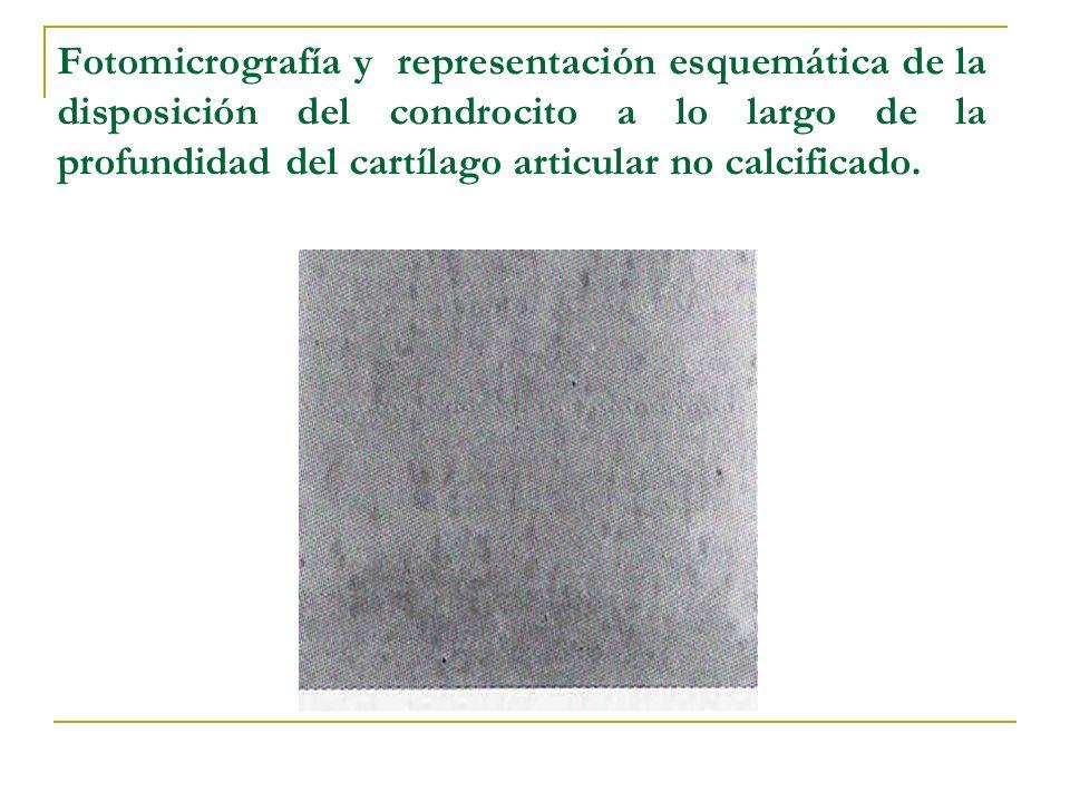 Fotomicrografía y representación esquemática de la disposición del condrocito a lo largo de la profundidad del cartílago articular no calcificado.