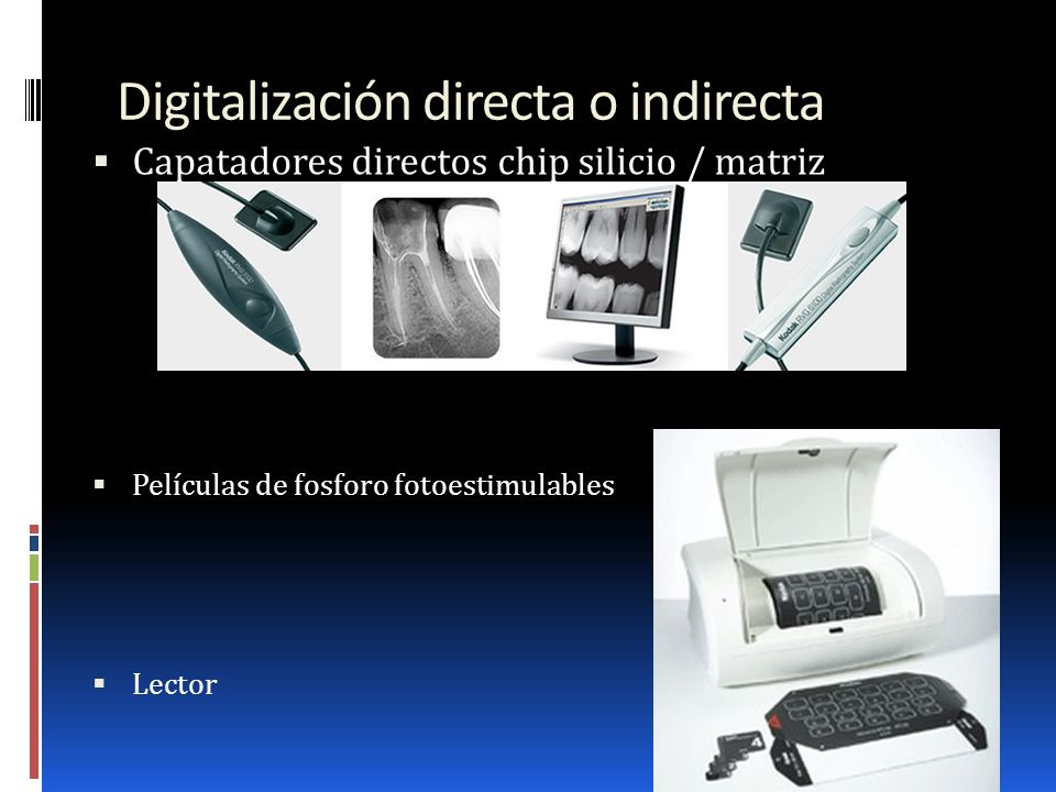 Digitalización directa o indirecta