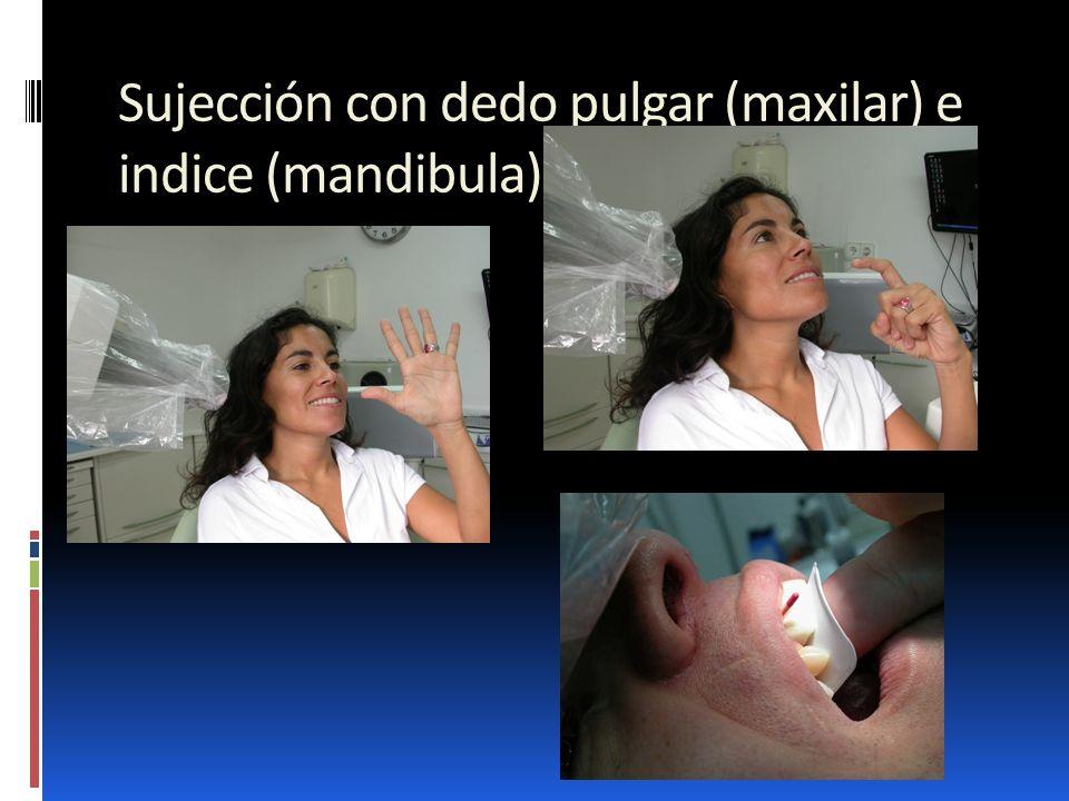 Sujección con dedo pulgar (maxilar) e indice (mandibula)
