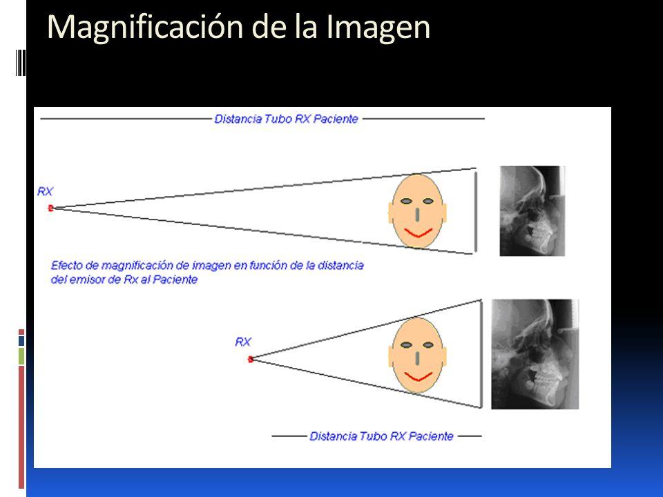 Magnificación de la Imagen