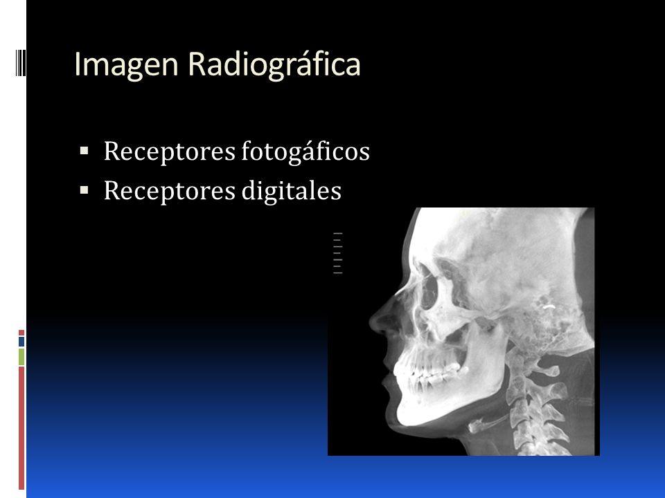 Imagen Radiográfica Receptores fotogáficos Receptores digitales