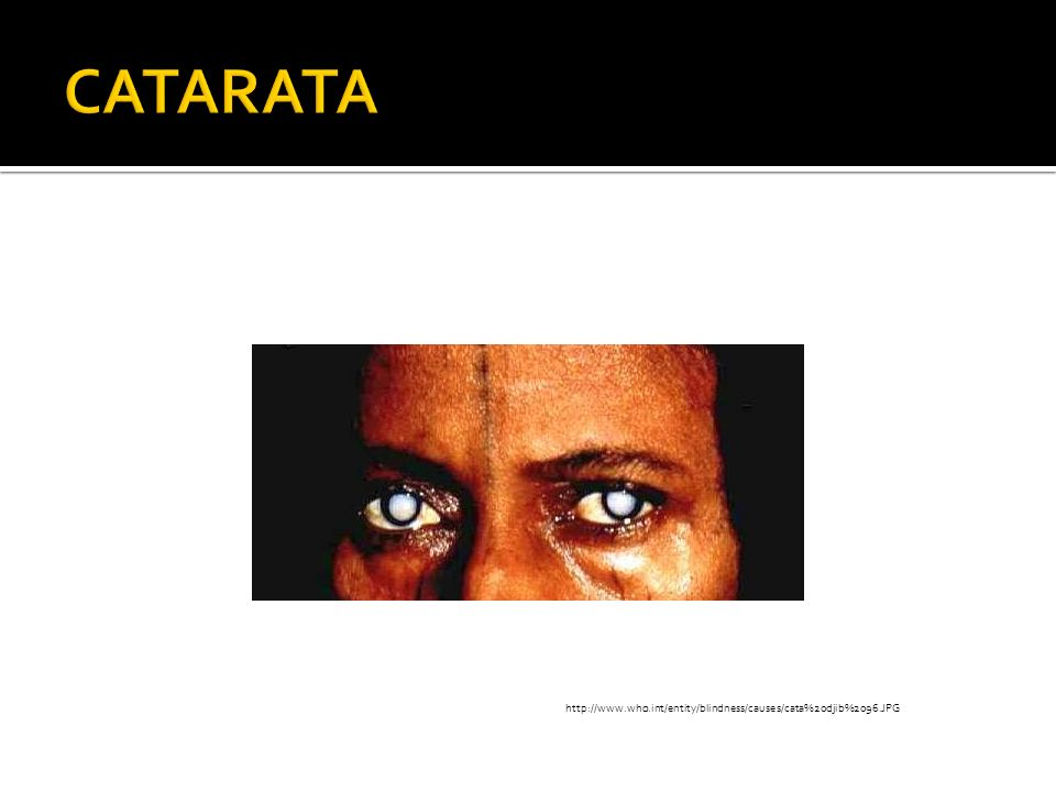 CATARATAhttp://www.who.int/entity/blindness/causes/cata%20djib%2096.JPG.