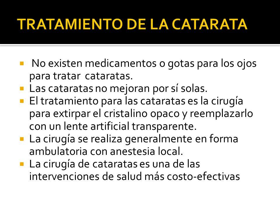 TRATAMIENTO DE LA CATARATA