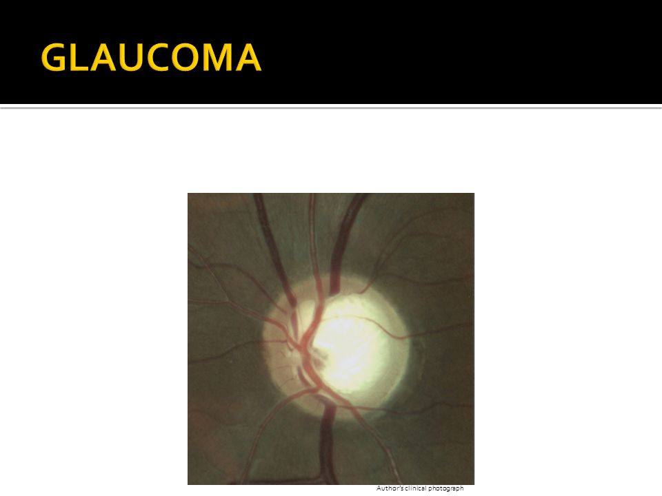 GLAUCOMA Author's clinical photograph