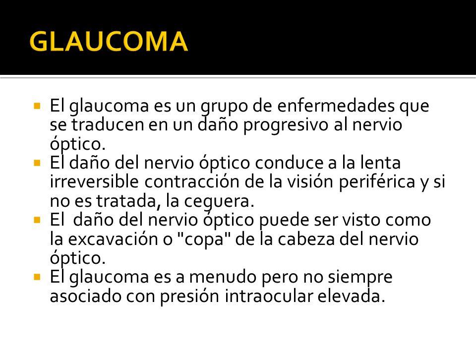 GLAUCOMA El glaucoma es un grupo de enfermedades que se traducen en un daño progresivo al nervio óptico.