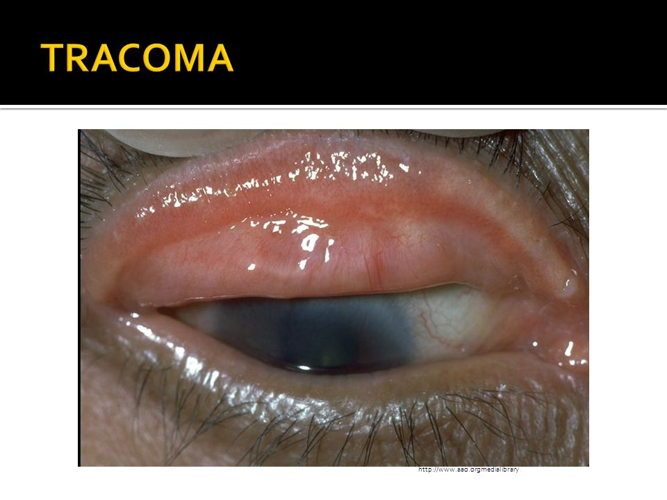 TRACOMA http://www.aao.orgmedialibrary http://www.aao.orgmedialibrary