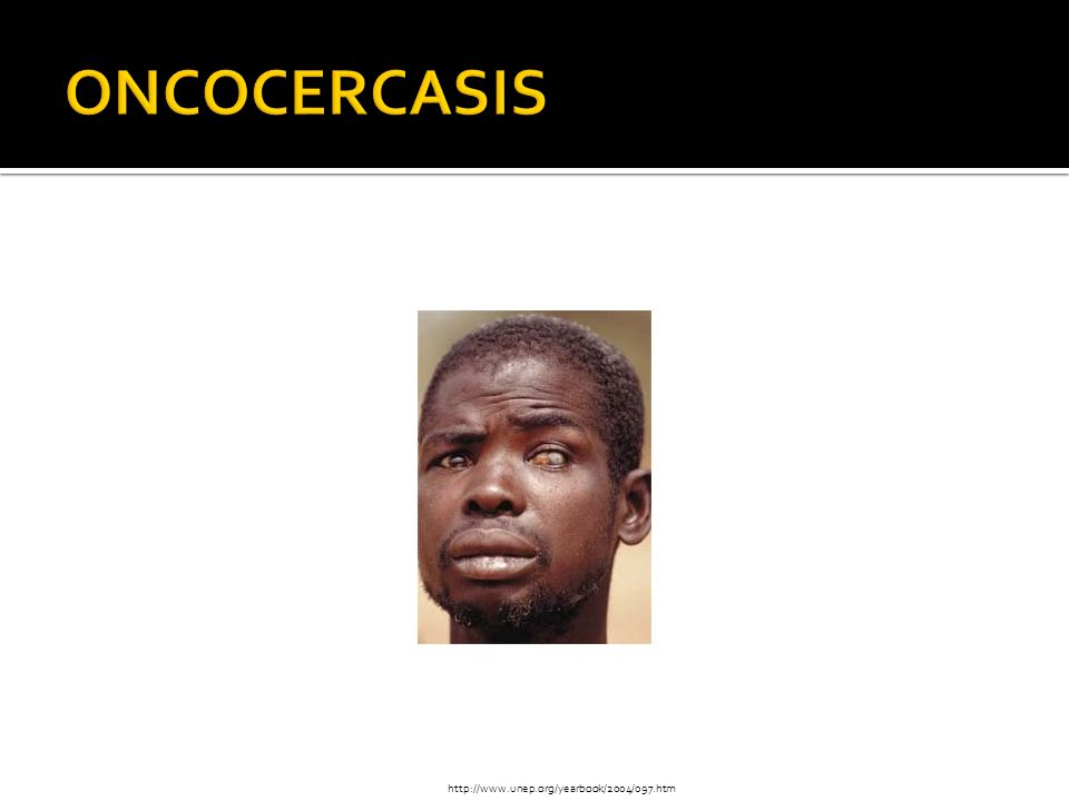 ONCOCERCASIS http://www.unep.org/yearbook/2004/097.htm