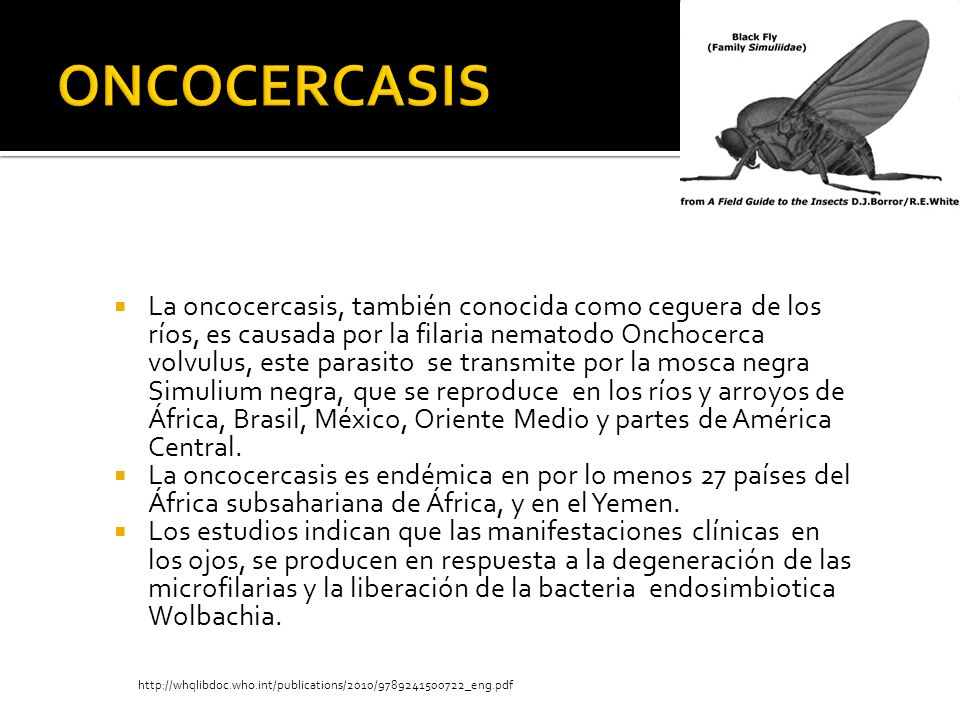 ONCOCERCASIS