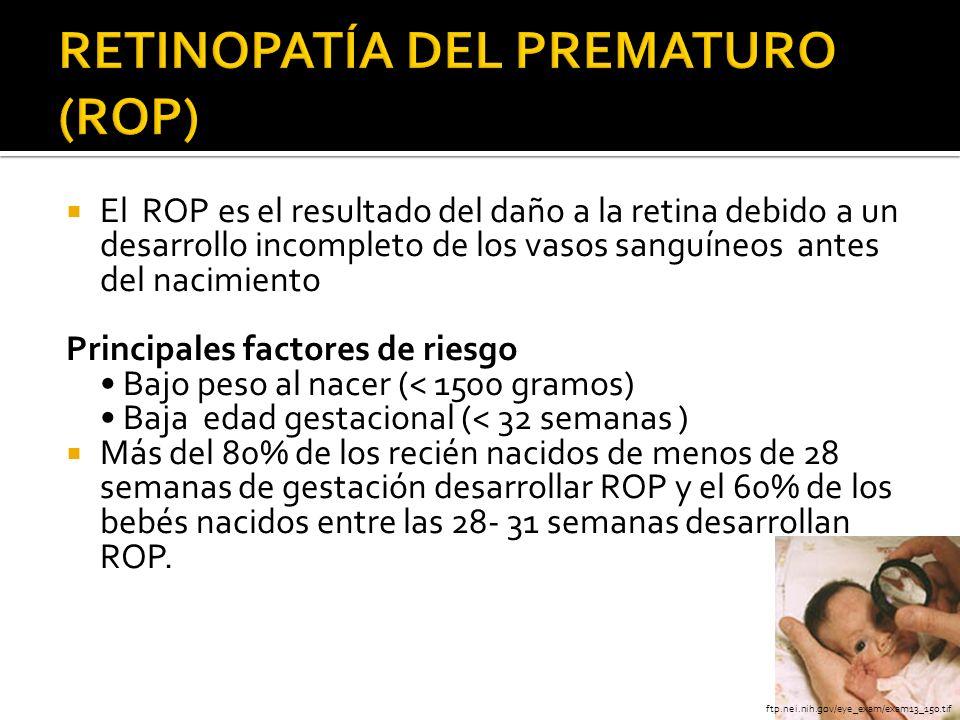 RETINOPATÍA DEL PREMATURO (ROP)
