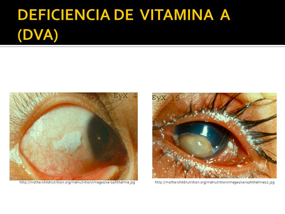DEFICIENCIA DE VITAMINA A (DVA)