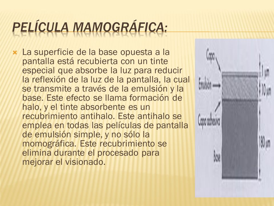 Película mamográfica: