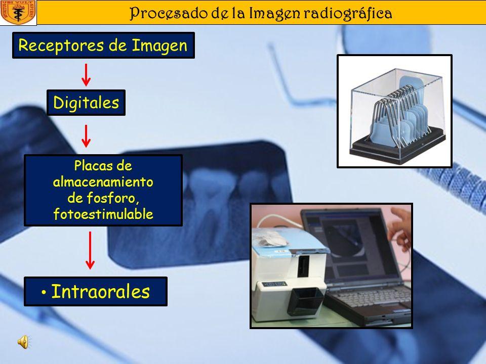 Procesado de la Imagen radiográfica