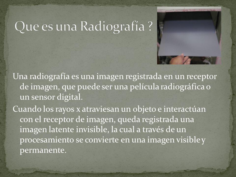 Que es una Radiografía