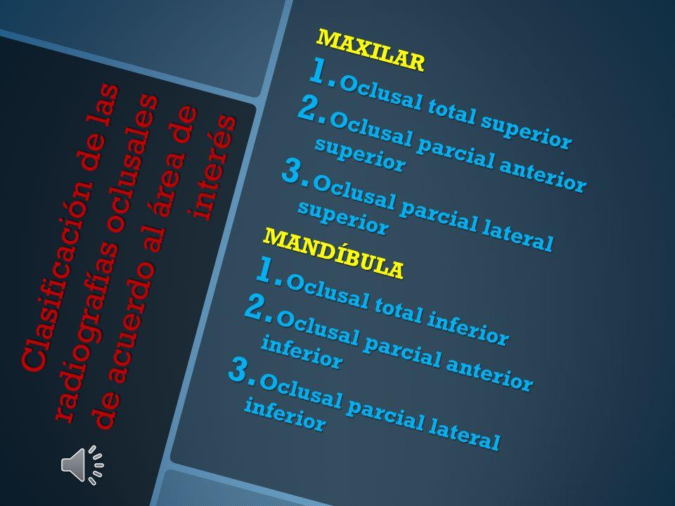 MAXILAR Oclusal total superior. Oclusal parcial anterior superior. Oclusal parcial lateral superior.