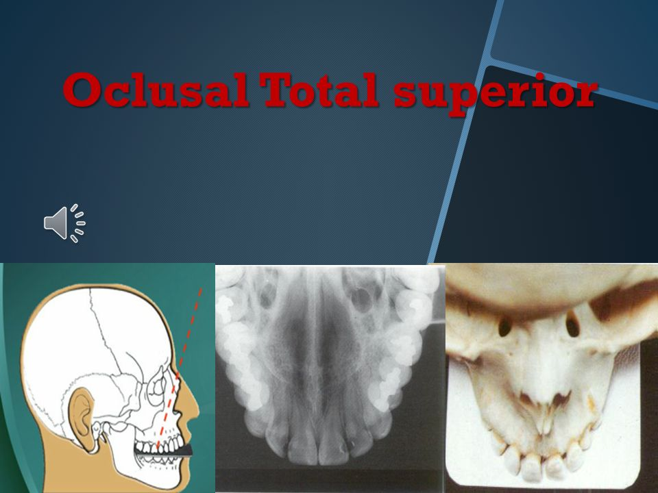 Oclusal Total superior