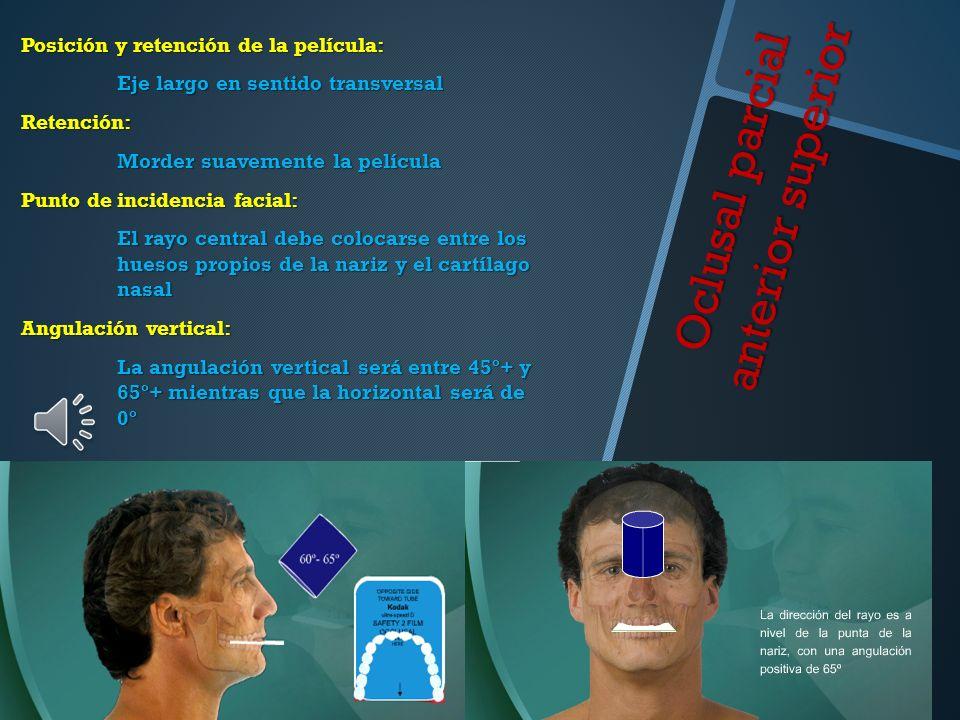 Oclusal parcial anterior superior