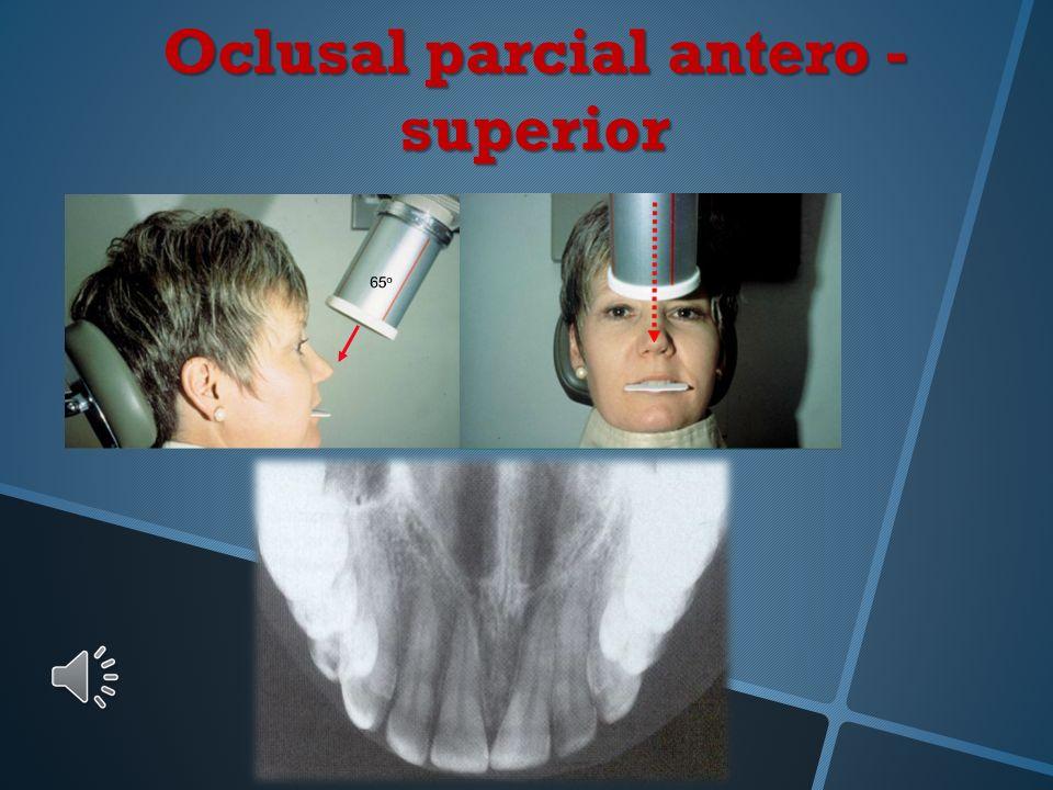 Oclusal parcial antero - superior