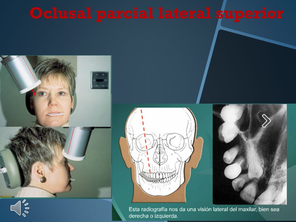 Oclusal parcial lateral superior