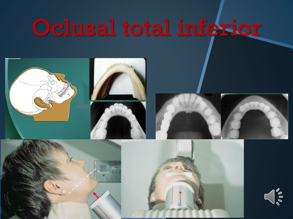 Oclusal total inferior