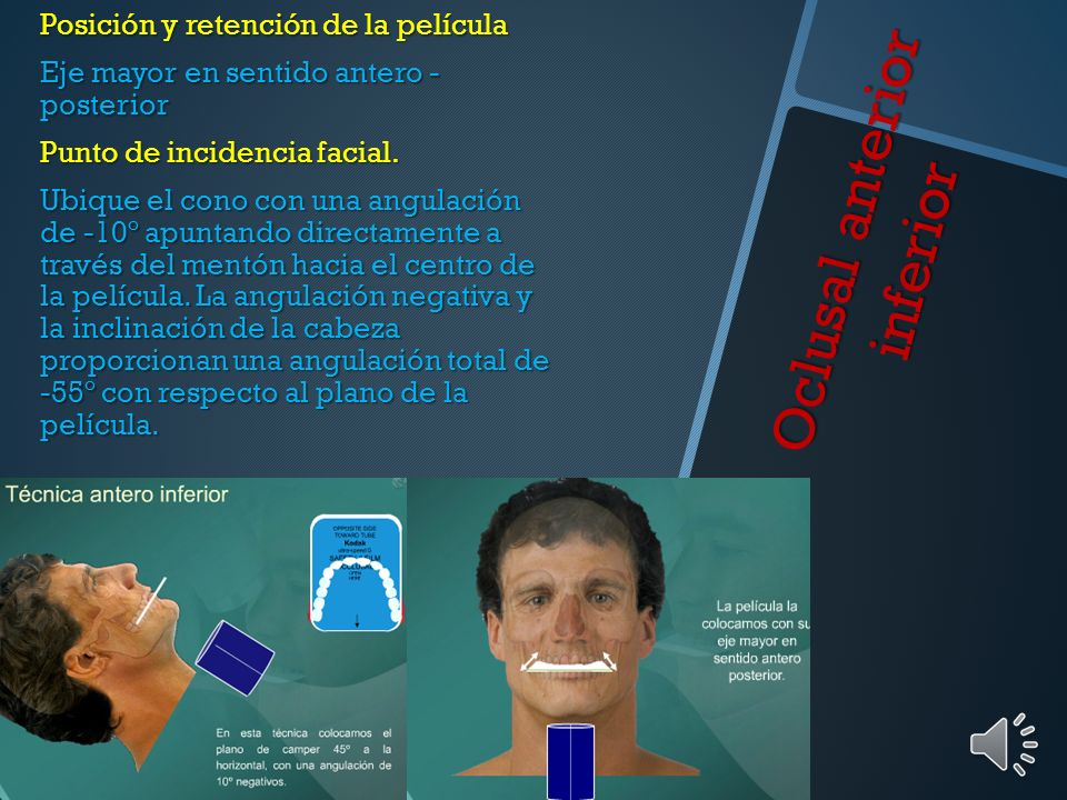 Oclusal anterior inferior