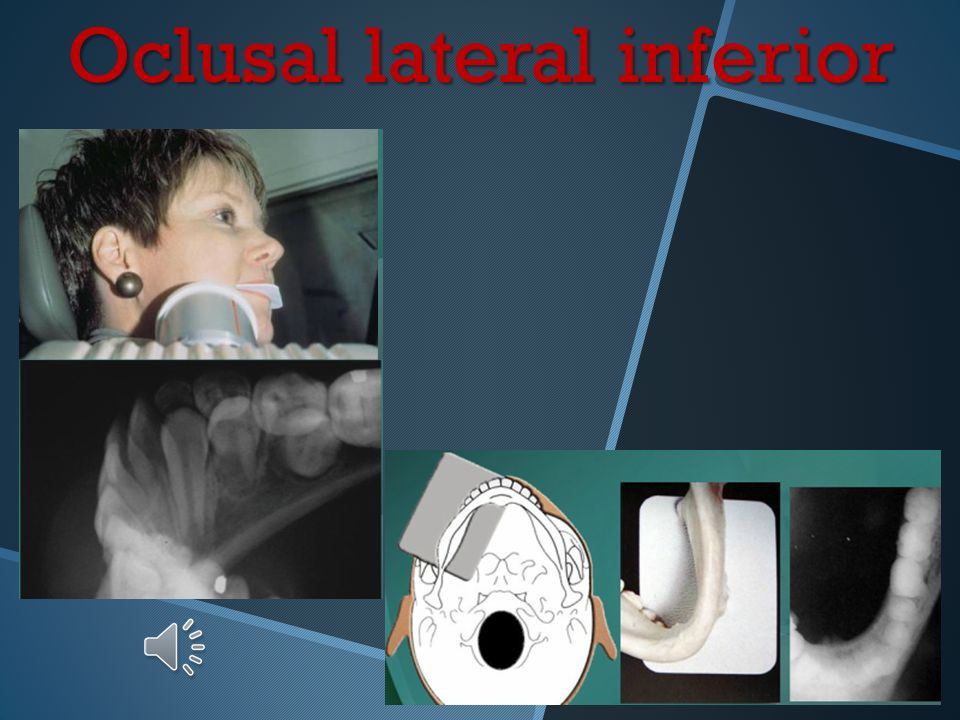 Oclusal lateral inferior