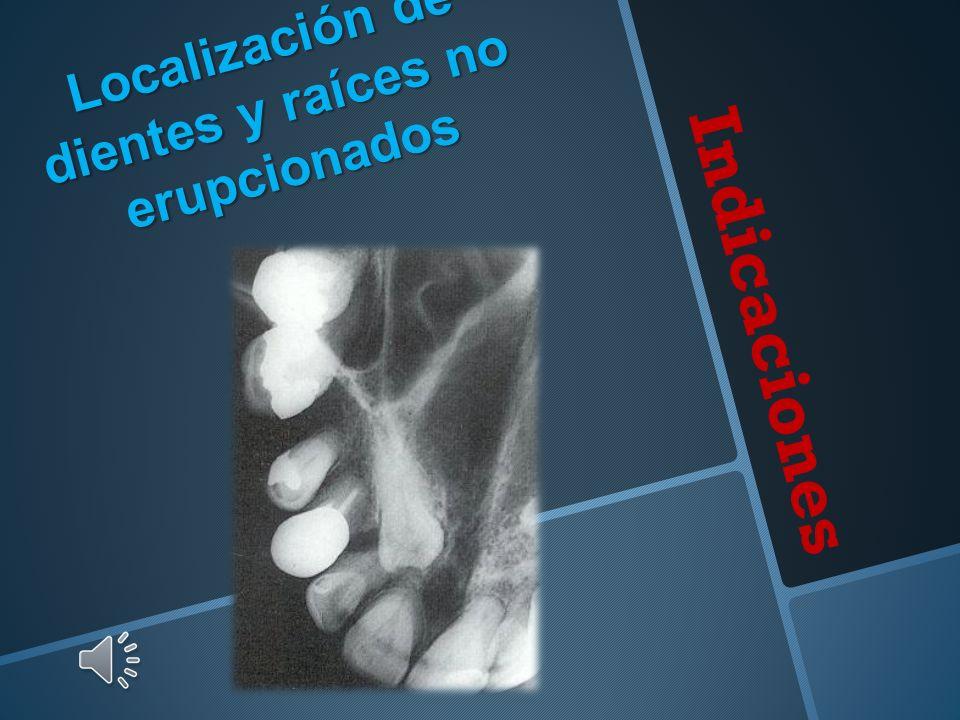 Localización de dientes y raíces no erupcionados