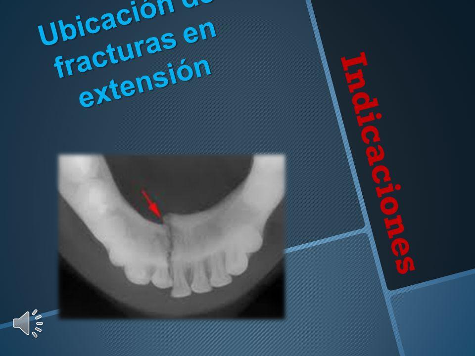 Ubicación de fracturas en extensión