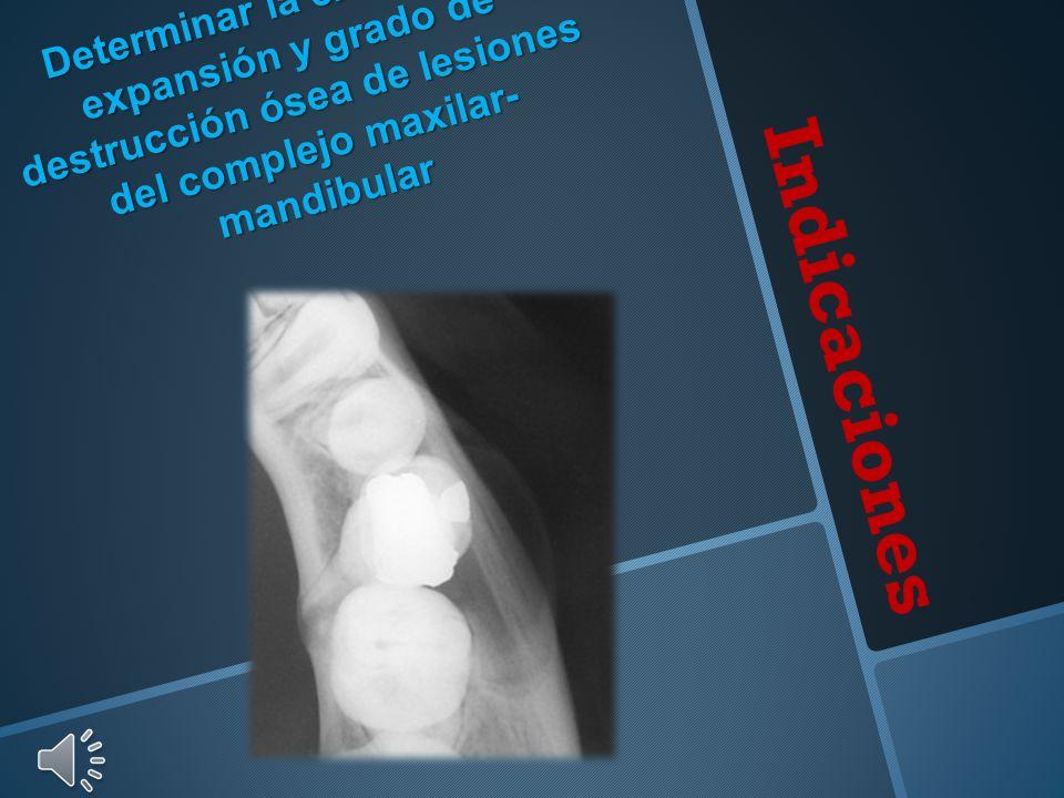Determinar la extensión, expansión y grado de destrucción ósea de lesiones del complejo maxilar-mandibular