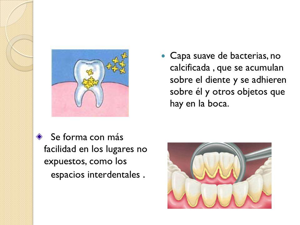 Capa suave de bacterias, no calcificada , que se acumulan sobre el diente y se adhieren sobre él y otros objetos que hay en la boca.