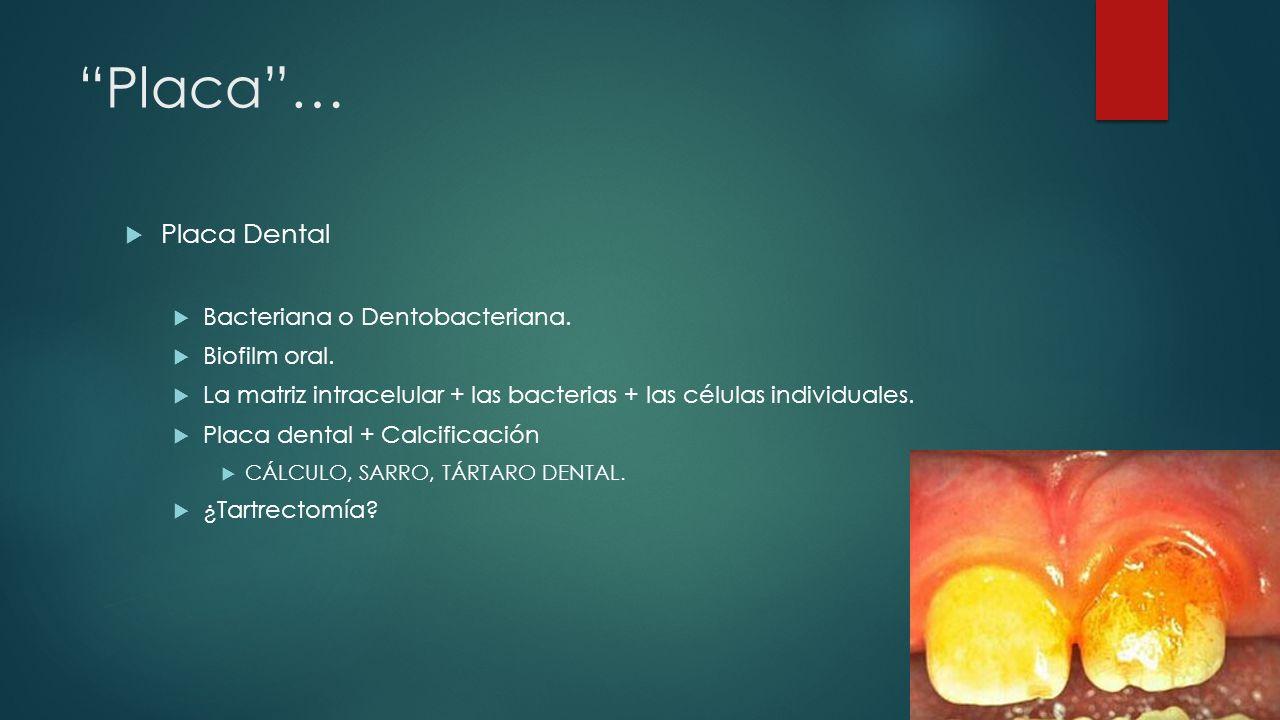 Placa … Placa Dental Bacteriana o Dentobacteriana. Biofilm oral.