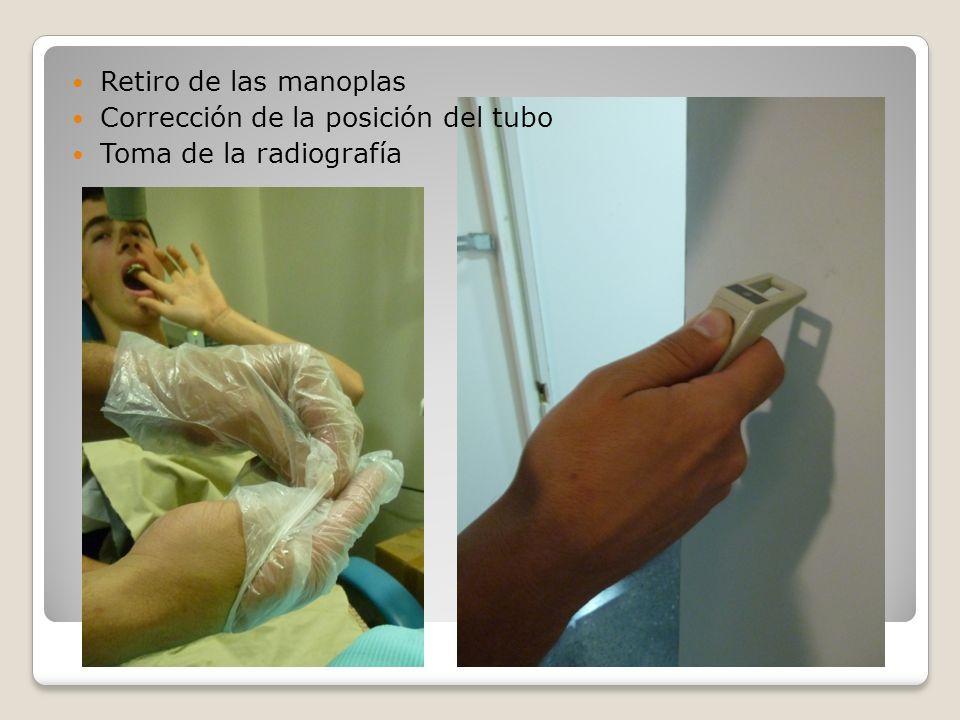 Retiro de las manoplas Corrección de la posición del tubo Toma de la radiografía