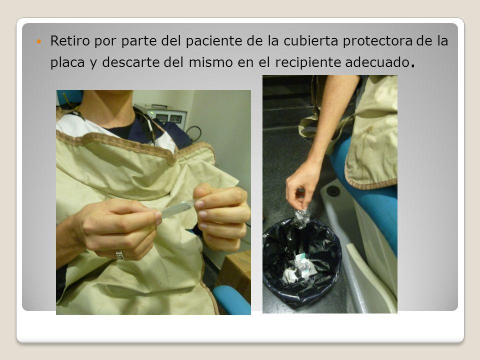 Retiro por parte del paciente de la cubierta protectora de la placa y descarte del mismo en el recipiente adecuado.