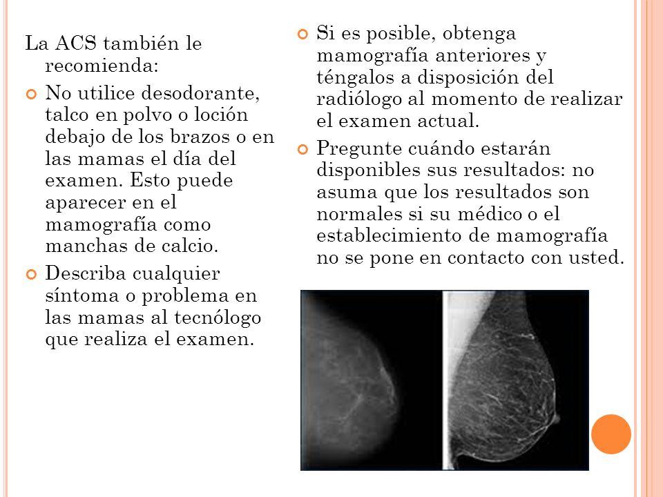Si es posible, obtenga mamografía anteriores y téngalos a disposición del radiólogo al momento de realizar el examen actual.